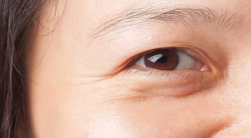 Bọng mắt là gì? Nguyên nhân gây bọng mắt và cách khắc phục