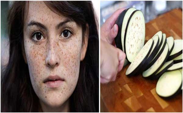 Trị nám da từ thiên nhiên với cà tím và dấm