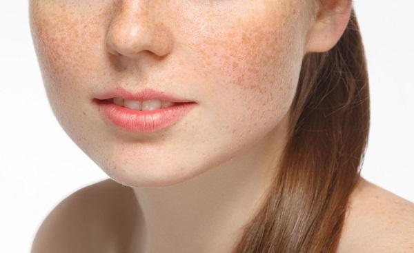 Rối loạn nội tiết tố cũng là nguyên nhân chính gây ra tình trạng nám da