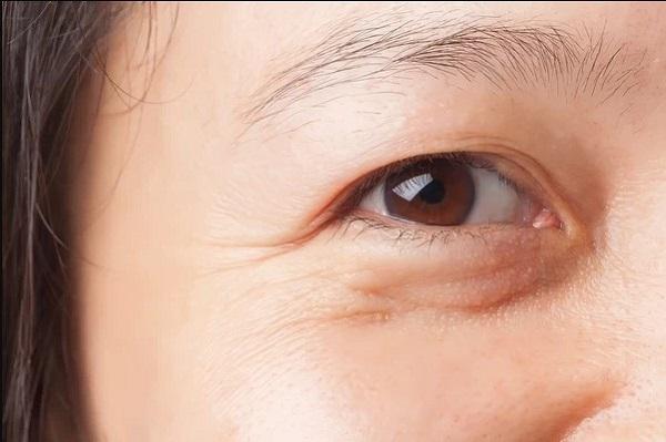 Dị ứng gây bọng mắt sưng