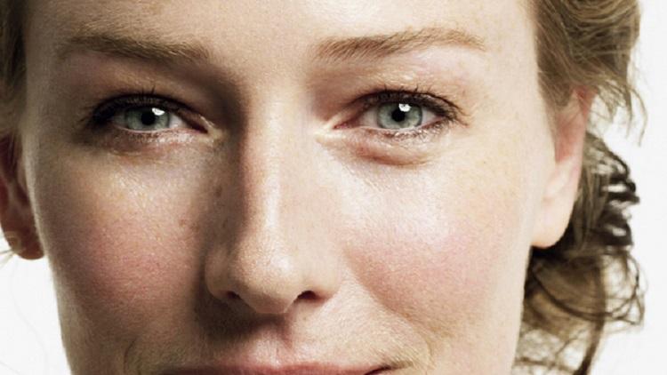 Bọng mắt sưng-nguyên nhân và cách khắc phục nhanh chóng