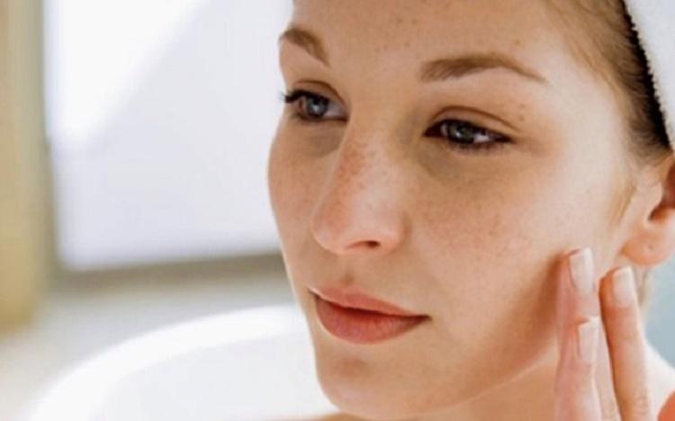 Cách trị nám quanh mắt hiệu quả