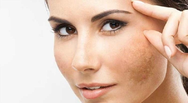 cách chữa nám da sau sinh hiệu quả trong nốt nhạc