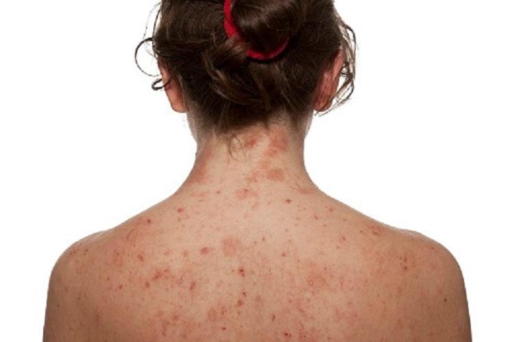 Toàn thân trắng sáng với loạt bí kíp trị nám ở chân, mũi, cổ, lưng