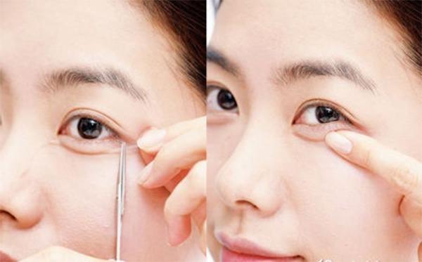 Cách tạo bọng mắt tự nhiên bằng keo dán bọng mắt